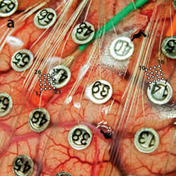 A sheet of electrodes picks up electrical activity from the surface of the brain.