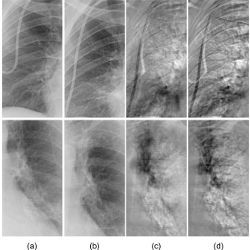 comparison of rib-suppressed temporal-subtraction images