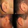 Could Ears Be the Perfect Biometric?