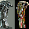 Stanford Medical Technology Exposes Hidden Maladies of Sculptor Auguste Rodin's Celebrated Hands