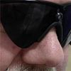 Michigan Man Among 1st in U.s. to Get 'bionic Eye'