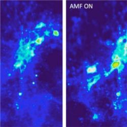 Neurons in presence of magnetic nanoparticles