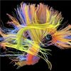 'Wiring Diagrams' Link Lifestyle to Brain Function