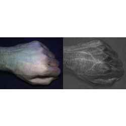 Compared to an image taken with a normal camera (left), a HyperCam image (right) reveals detailed vein and skin texture patterns that are unique to each individual.
