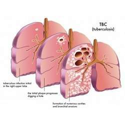 Lungs suffering from tuberculosis.