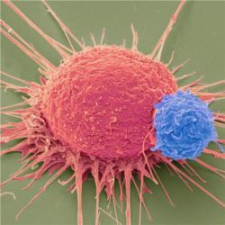 Human T cells (blue), cancer cells (pink)