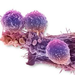 Cancer cell and T lymphocytes