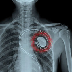 X-ray image of implanted medical device