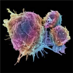 T cells (right) vs cancerous tumors (left)