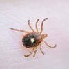 Fighting Tick-Borne Disease With Computer Science