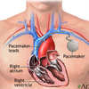 Pacemaker Recall Exposes National Need for Research and Education in Embedded Security