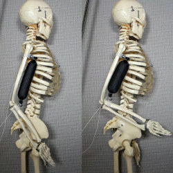 soft artificial muscle on a skeleton arm