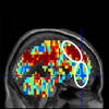CMU, Pitt Brain Imaging Science Identifies Individuals With Suicidal Thoughts