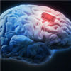 Q&a: The Ethics of ­sing Brain Implants to ­pgrade Yourself