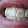 Scientists Develop Tooth-Mounted Sensors That Can Track What You Eat