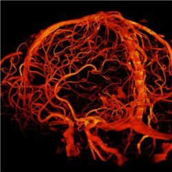 Cerebral blood vessels