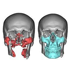 At left, a rendering of what a face looked like before surgery; at right, a planned rendering based on the donor's face.