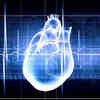 'Smart' Devices Help Reduce Adverse Outcomes of Common Heart Condition