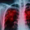 AI Can Detect Covid-19 in the Lungs Like a Virtual Physician, Study Shows